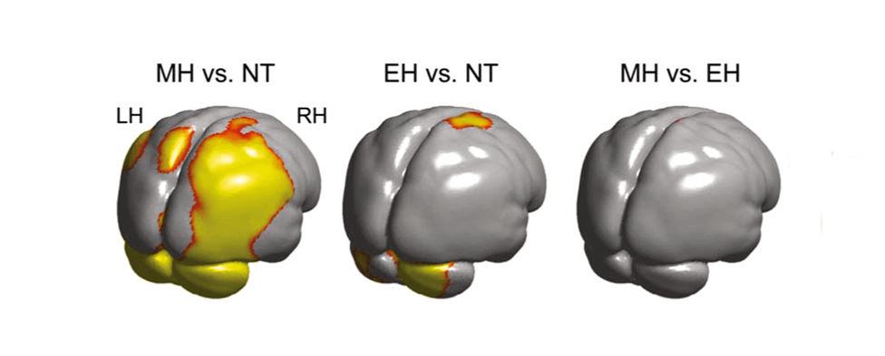 Comparación de los cerebros de neandertales, humanos modernos y primeros Homo sapiens.