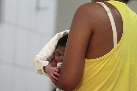 microcefalia y virus zika
