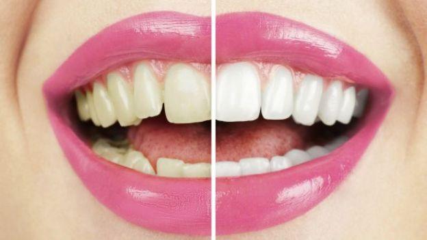 Comparación de dientes blanqueados