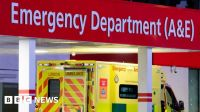 NHS figures reveal long waits for routine ops in England