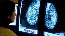 Doctora examina las radiografías de unos senos.