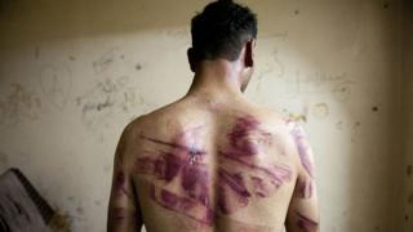 File photo of a Syrian man showing marks of torture on his back (23 August 2012)