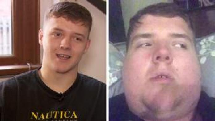 Student Olly Finch had mumps
