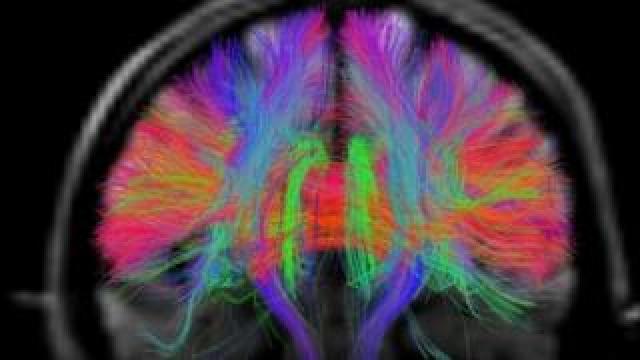 Brain signals weaken when some cells wear out