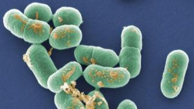 Coloured scanning electron micrograph (SEM) of Listeria monocytogenes bacteria