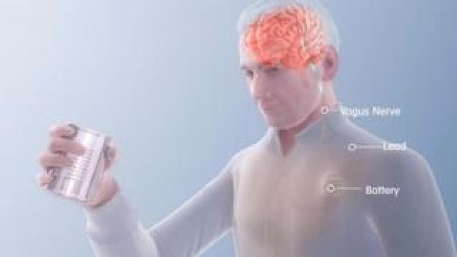 Vagus Nerve Stimulation (VNS) diagram