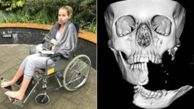 Emily Eccles after the operation, and the x-ray taken beforehand