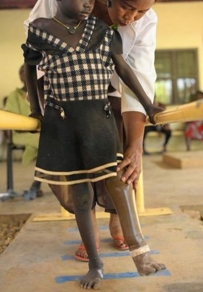 A girl with a prosthetic limb taking a step with the help of a doctor - Friday 12 April 2019