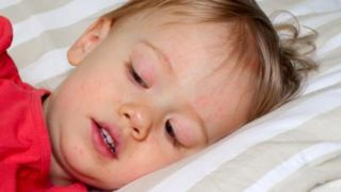 Child in bed with scarlet fever