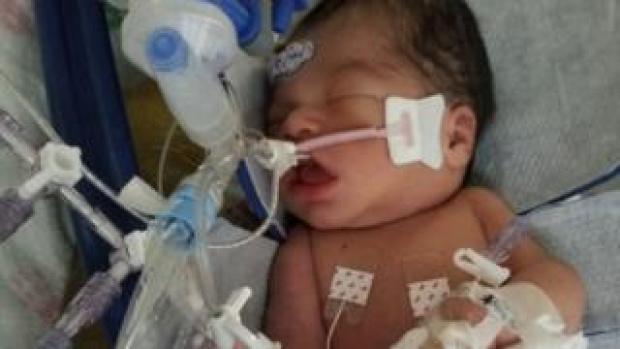 Baby Yovanny Jadiel Lopez