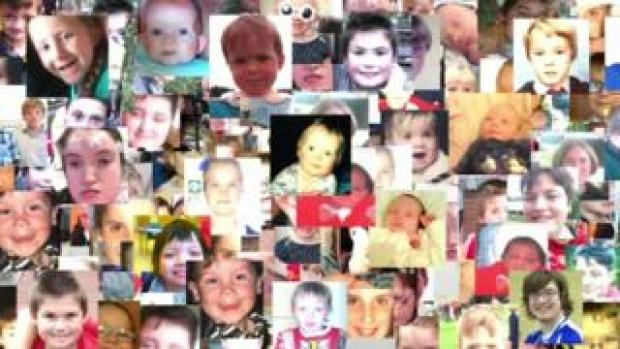 Collage of children's faces with sodium valproate syndrome