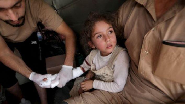 طفلة سورية مصابة