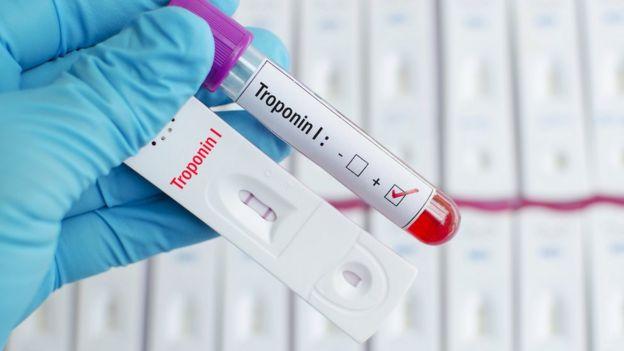 El análisis, llamado troponina, detecta los niveles de dicha proteína que se libera cuando el músculo del corazón está dañado.