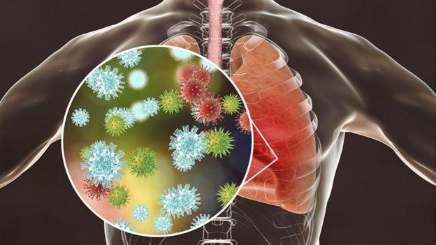El SARS-CoV-2 en los pulmones