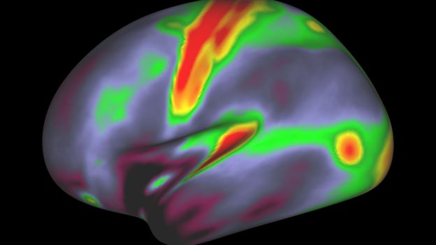 map of myelin in the brain