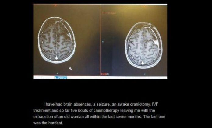 Foto de Sarah-May ha escrito sobre su tratamiento en su blog y ha compartido las imágenes del tumor