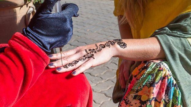 El Tatuaje De Henna Negra De Mis Vacaciones Que Me Dejó Cicatrizada