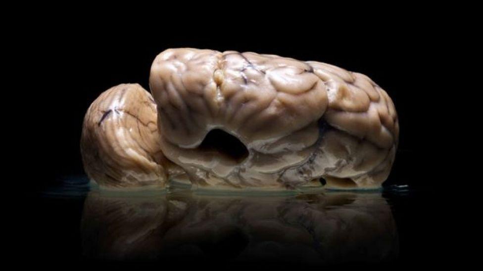 Un cerebro deformado a causa de la hidrocefalia