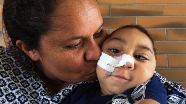 Solange Ferreira con su hijo Jose Wesley, afectado por el virus del Zika