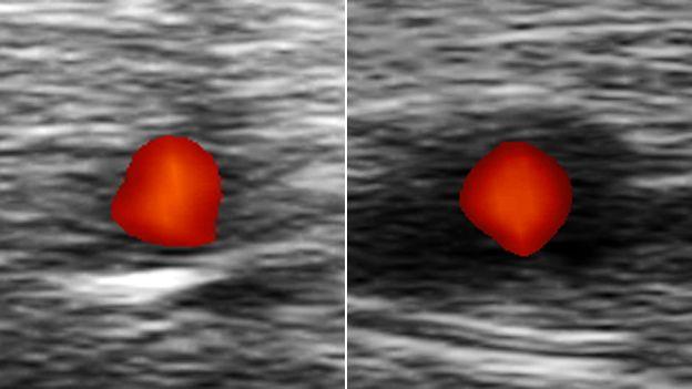 Uma artéria saudável à esquerda e outra afetada pela arterite de células gigantes à direita