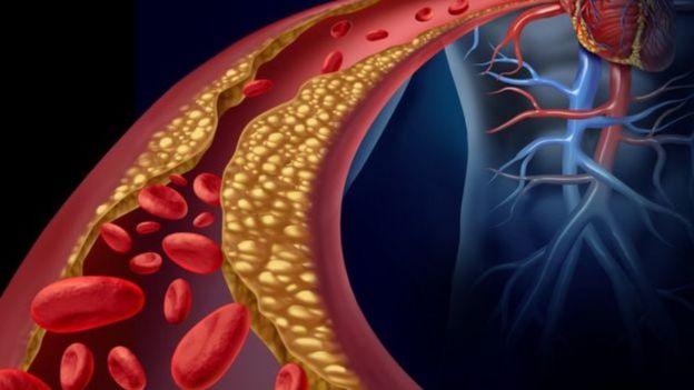 Ilustração mostra gordura obstruindo parte de corrente sangu