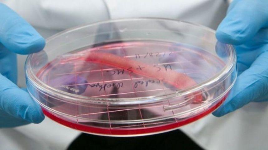 Urethra in specimen dish