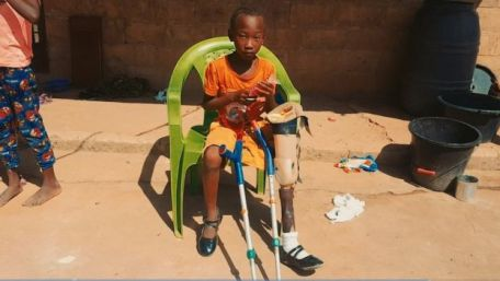 Wudeh with one of Euan's old prosthetic legs