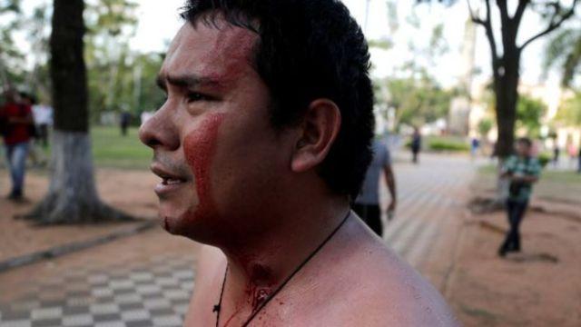 Un manifestante con sangre