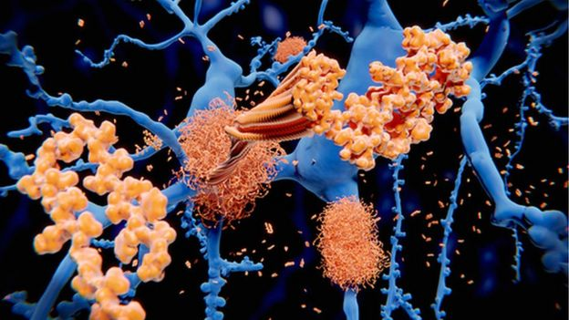 Amyloid beta protein in neurons in the brain