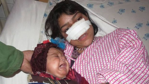 Reza Gul was attacked by her husband earlier this year