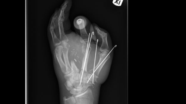 surgeons save hand severed