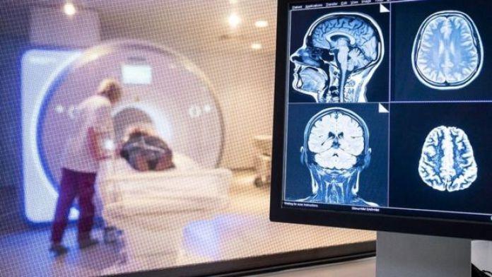 Un patient subit un scanner cérébral à l'hôpital