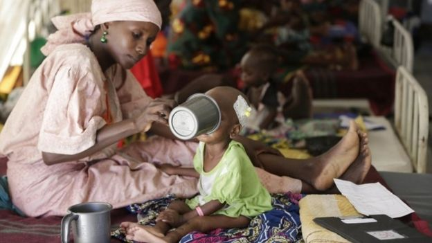 A mother feeds her malnourished child at a feeding centre run by Doctors Without Borders in Maiduguri, Nigeria