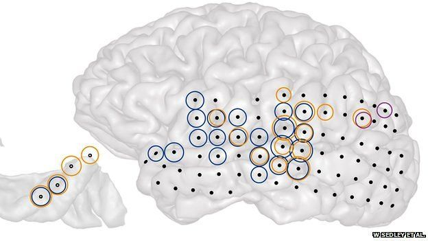 brain recordings illustration