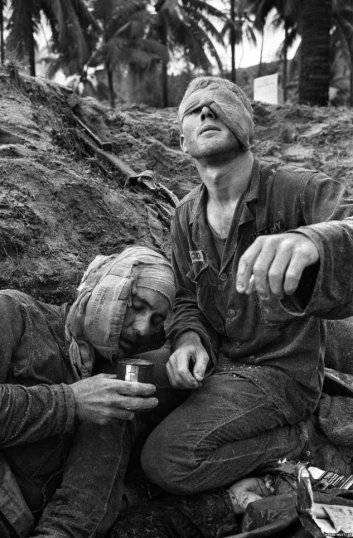 First Cavalry Division medic Thomas Cole with one of his own eyes bandaged, continues to treat wounded Staff Sgt. Harrison Pell during a 30 January 1966 fire fight at An Thi in the Central Highlands between US troops and a combined North Vietnamese and Vietcong force