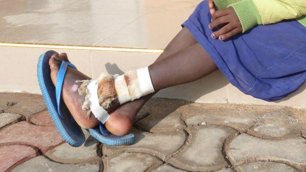Boche's injured leg