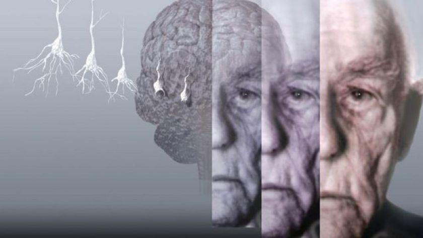 Conceptual illustration shows patient losing cognitive ability.