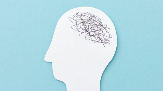 Nudo en el cerebro