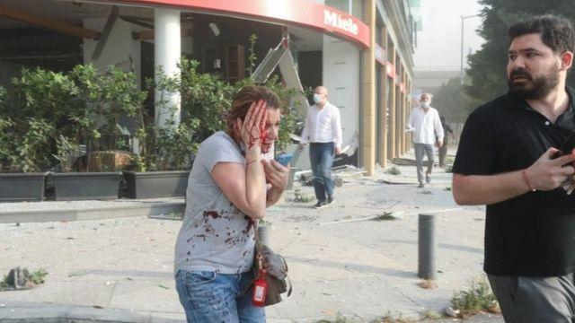 Una mujer herida tras la explosión en Beirut.
