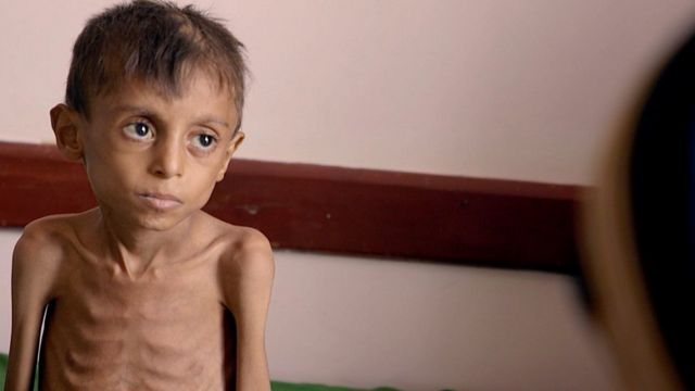 The situation in Yemen is described as the world's worst humanitarian disaster
