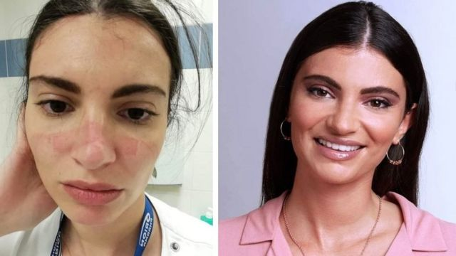 Nurse Martina before and after the Corona crisis in Italy