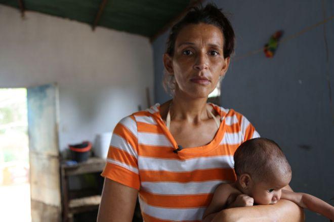 Diese Mutter isst so wenig, dass sie ihr Baby nicht stillen kann