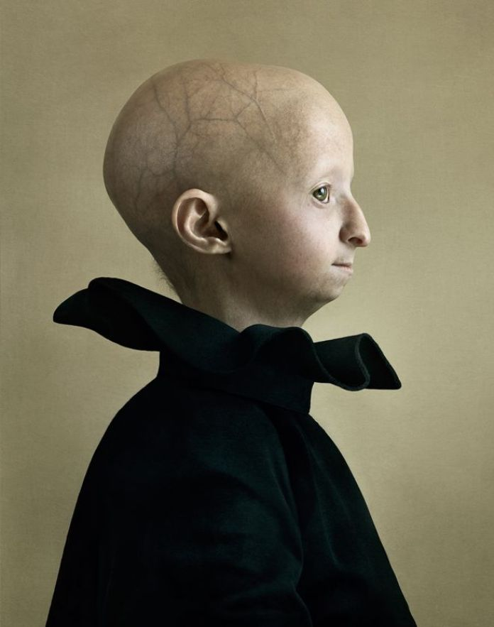 A child with progeria, a rare medical condition, poses for a portrait