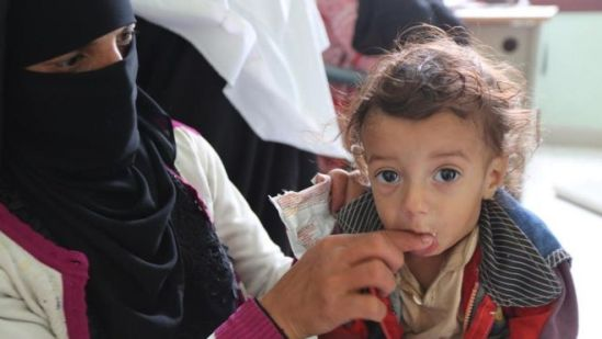 A 14-month-old child receives treatment for malnutrition in Amran, Yemen, 16 August 2018