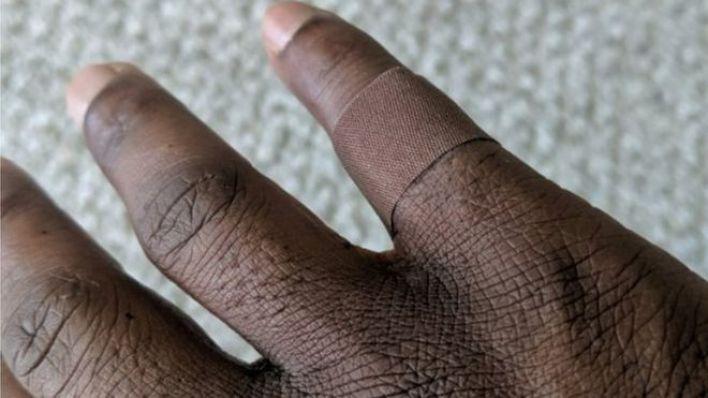 Finger with dark coloured plaster