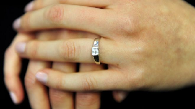 United States: In a nightmare in a dream, a woman swallows a diamond ring
