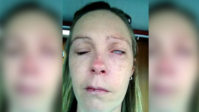 Rachel Foulkes-Davies - her left eye looks swollen and all you can see is the white of her eye