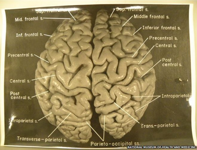 Original photos of Einstein's brain