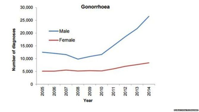 Recrudescence du gonocoque en angleterre entre 2015 et 2014