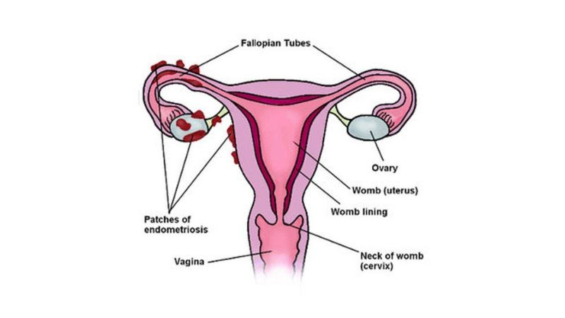 A diagram showing how endometriosis builds up around the fallopian tubes and ovaries